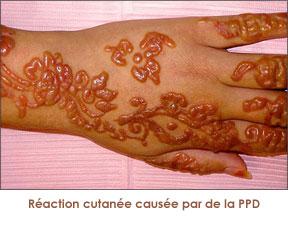 la ppd est utilise sous forme dencre ou ajoute de la pte de henn afin dobtenir une coloration noire contraitrement la couleur rouge brun quon - Coloration Henn Noir